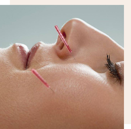 Lifting par acupuncture pour un visage plus rayonnant